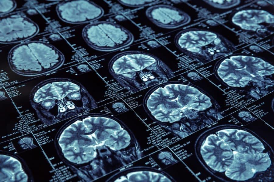 MRI photo of human brain